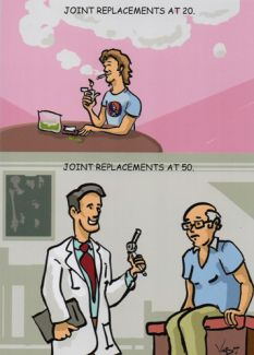 Joint Replacement At 20 and 50